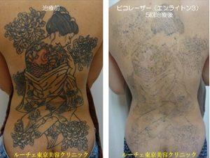 タトゥー除去ピコレーザー症例⑤ルーチェクリニック