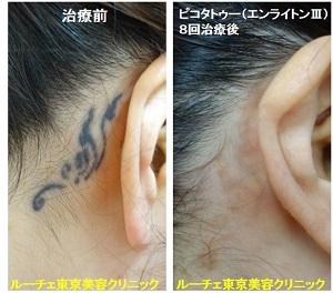 タトゥー除去ピコレーザー、8回、うなじ、黒