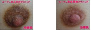 ピコニップルケアで明るい色の乳首になりました。