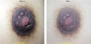 授乳後の乳首の黒ずみにもピコニップルケア