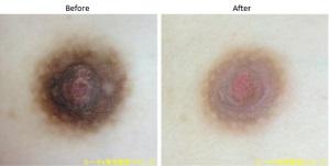 地黒のお肌でも乳首の黒ずみは明るくなります。
