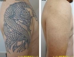 タトゥー除去ピコレーザー症例②ルーチェクリニック