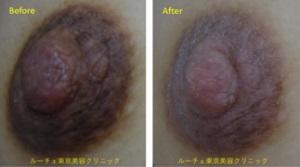 乳首をピンクにしたい方にはピコニップルケア®1か月後