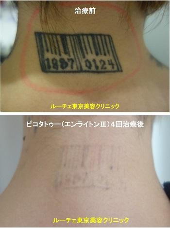 タトゥー除去ピコレーザー、4回、項、黒