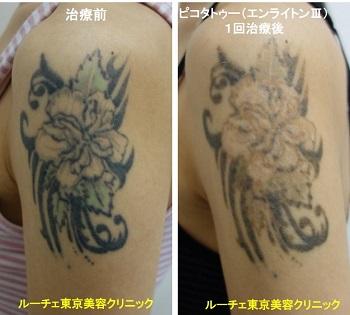 タトゥー除去ピコレーザー、1回、腕、黒、緑