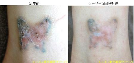 手首のタトゥー除去