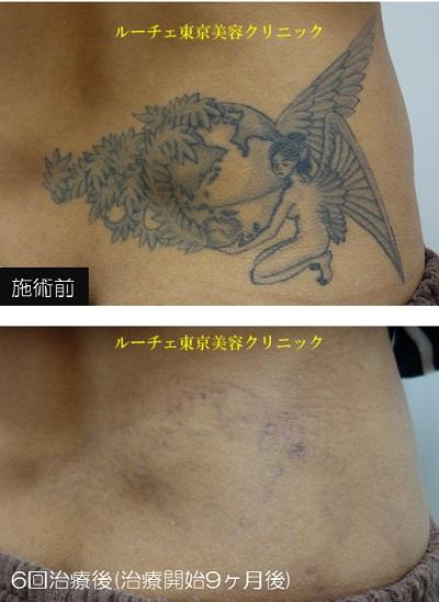 腰の黒タトゥー6回