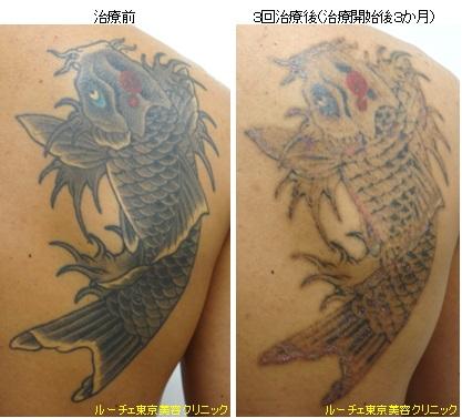 背中の広範囲タトゥー