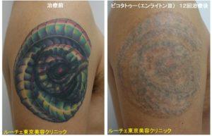 タトゥー除去ピコレーザー062@ルーチェ東京美容クリニック