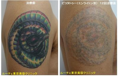 腕のマルチカラータトゥーのピコレーザー 赤黒緑黄色青黄緑紫12回