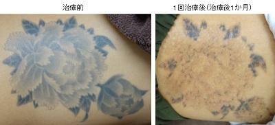 腰の大きいタトゥー