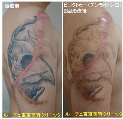 タトゥー除去ピコレーザー、2回、腕、黒