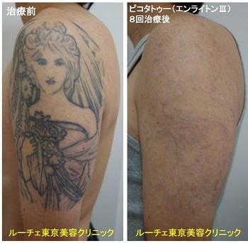 タトゥー除去ピコレーザー、8回、腕、黒