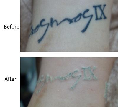 ピコレーザー(エンライトン)でタトゥー除去をしています。