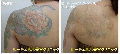 タトゥー除去ピコレーザー、2回、背中、黒、緑、オレンジ、黄色
