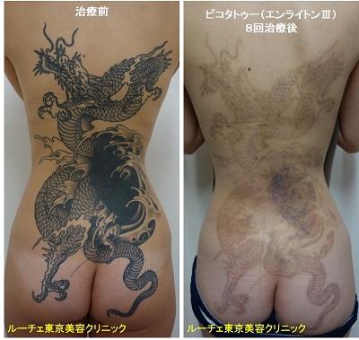 背中から腰にかけての広範囲タトゥーを薄くしています 黒8回