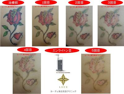 バラのタトゥー。赤・黄・緑・黒の4色カラータトゥー