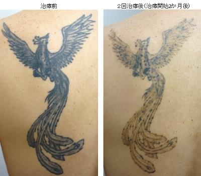 圧倒的症例数ピコレーザー(エンライトン)によるタトゥー除去