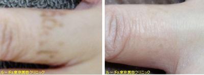 他院修正指のタトゥー