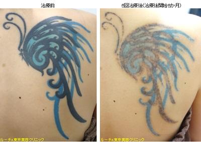 黒と青の2色タトゥー
