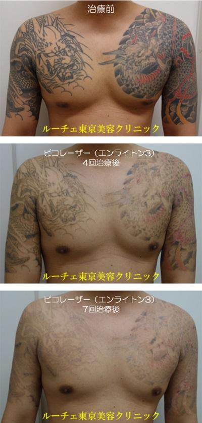 胸から両肩の広範囲カラータトゥーが薄くなっていく経過写真