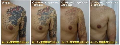 胸から腕にかけて広がる龍のカラフルタトゥー 11回 腕 肩 胸 黒 赤