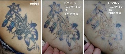 胸のお花のタトゥーのインクを取る経過写真です。2回胸黒青紫