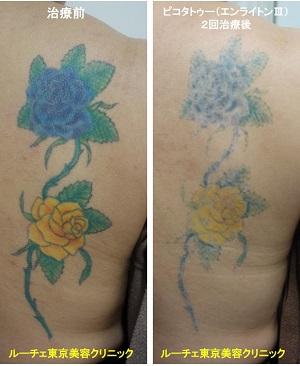 背中の青と黄色と緑のカラフルなお花のタトゥーを消しています 2回 背中 黒 青 水色 黄色 オレンジ