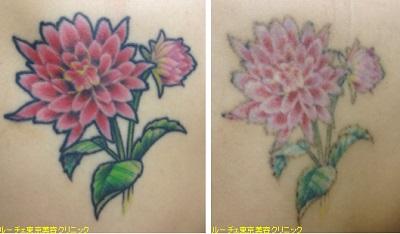 5色花のタトゥー