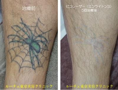 足のカラータトゥー。すね毛は消えません