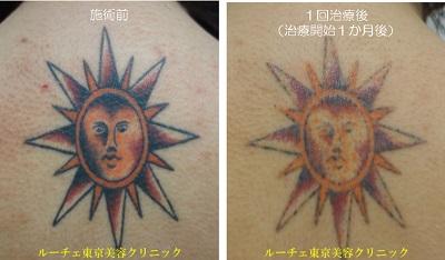 背中のタトゥー除去1回目