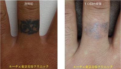 濃い指のタトゥー