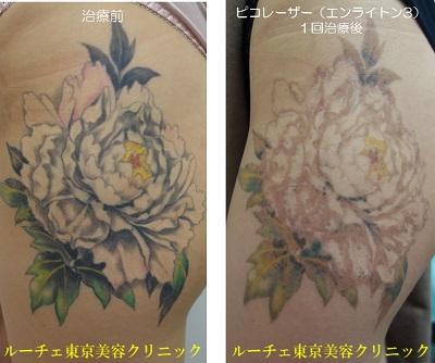 花柄のカラフルタトゥーのケース