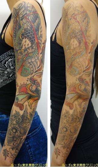 10色マルチカラータトゥー腕