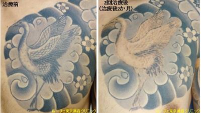 胸のタトゥー。部分的にとることもできます。