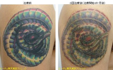 腕のカラフルタトゥー