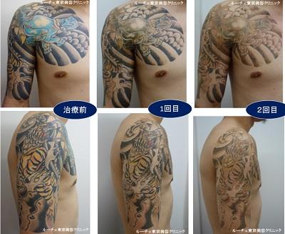 広範囲、腕から肩、胸のカラータトゥー経過3回分写真 青黄色黒オレンジ4色