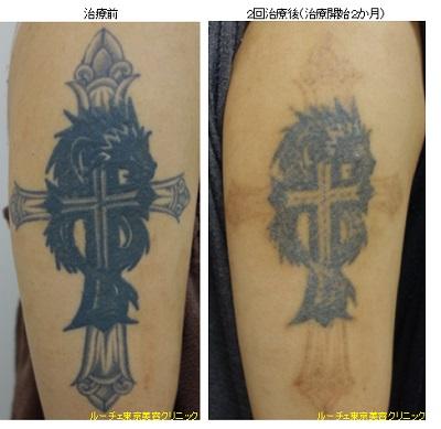 濃い腕のタトゥー