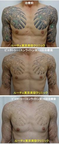 タトゥー除去ピコレーザー、6回、腕~胸、黒、緑