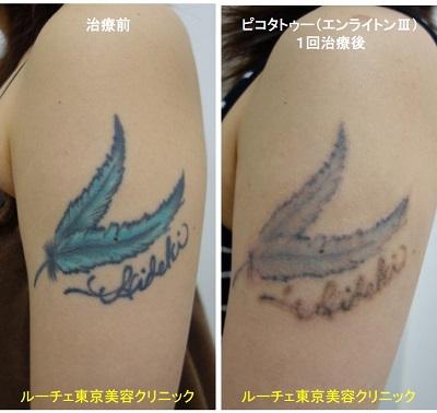 タトゥー除去ピコレーザー、1回、腕、黒、水色
