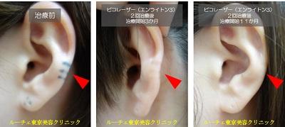 耳の黒いタトゥーが2度のピコレーザー治療で消えました