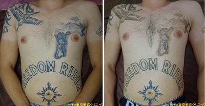 胸とお腹のタトゥー