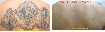 背中上半分の広いタトゥーをピコレーザーで消しています