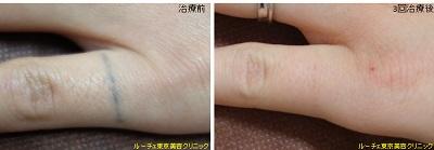 指自彫りタトゥー
