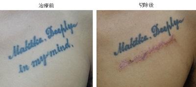 タトゥー除去(切除縫合法)