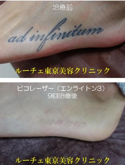 足の黒1色タトゥーで治療終了