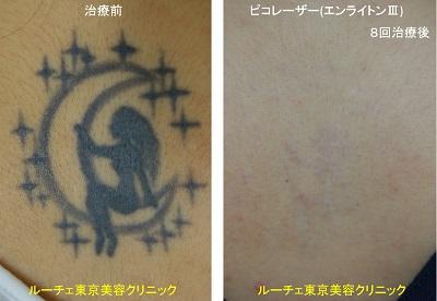 背中の黒一色タトゥーにピコレーザーを照射しました。