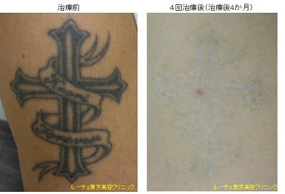 ピコレーザー(エンライトン)でタトゥー除去しました。4回治療後です。