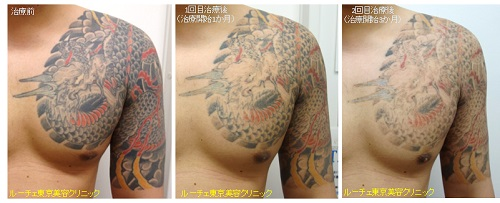 腕~胸の濃い広範囲タトゥー