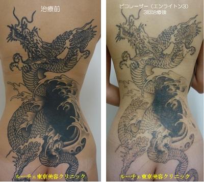 背中の広範囲タトゥーを薄くしています